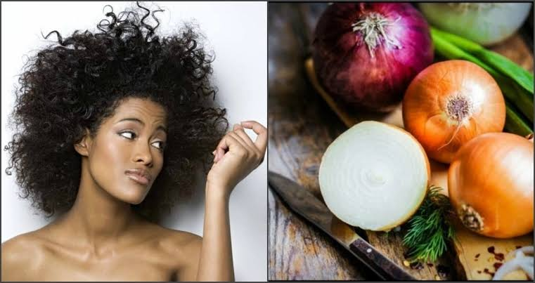 Photo of 10 Ways To Prevent Hair Loss Using Onion